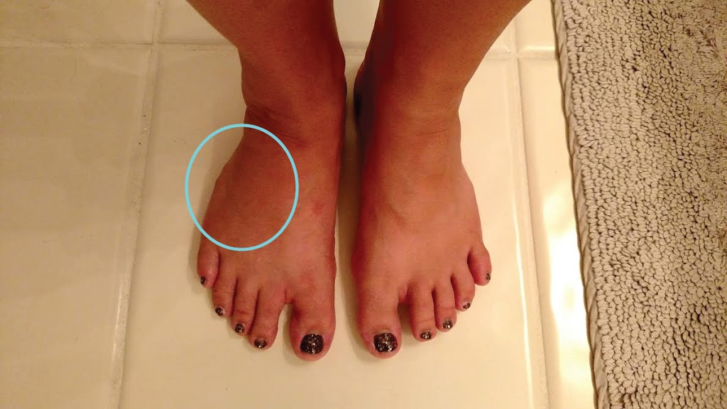 how to get the swelling out of my feet