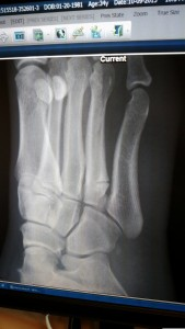 3 Week Progress 4th Metatarsal Fracture